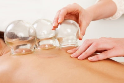 Axis Natural Medicine in Fort Myers uses cupping to treat painful conditions and respiratory problems.